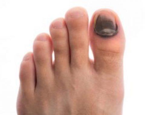 Problemas más comunes de la piel de los pies del corredor